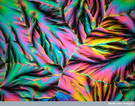 Photo credit: BOOO4541 Dopamine cyrstals viewed on polarized l by Spike Walker, Wellcome Images